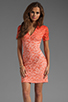 Image 1 of Dolce Vita Alexis Stretch Lace Dress in Pink Ombre