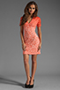 Image 2 of Dolce Vita Alexis Stretch Lace Dress in Pink Ombre
