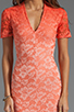 Image 5 of Dolce Vita Alexis Stretch Lace Dress in Pink Ombre