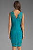 Image 4 of Dolce Vita Tamia Teal Lace Tank Dress in Teal