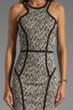 Image 5 of Parker Palms Dress in Black/White